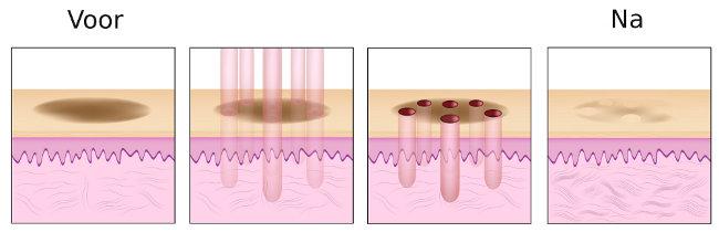 Huidbehandeling met fractional laser