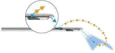 Water-jet geassisteerde liposculptuur