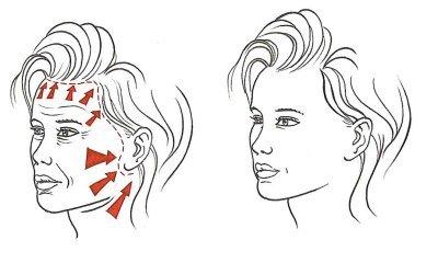 aanspannen van de huid bij een facelift