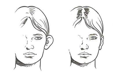 Correctie van afstaande oren (flaporen)